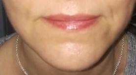 depilacja laserowa olkusz laserowe zamykanie naczynek olkusz mezoterpaia igłowa olkusz kosmetolog olkusz liposonix hifu permanentny olkusz hifu gabinet