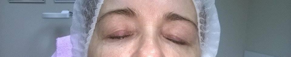 fotoodmładzanie olkusz ipl olkusz kosmetolog olkusz gabinet salon kosmetyczny olkusz depilacja laserowa olkusz kosmetyczki olkusz www.kosmetyka-olkusz.pl