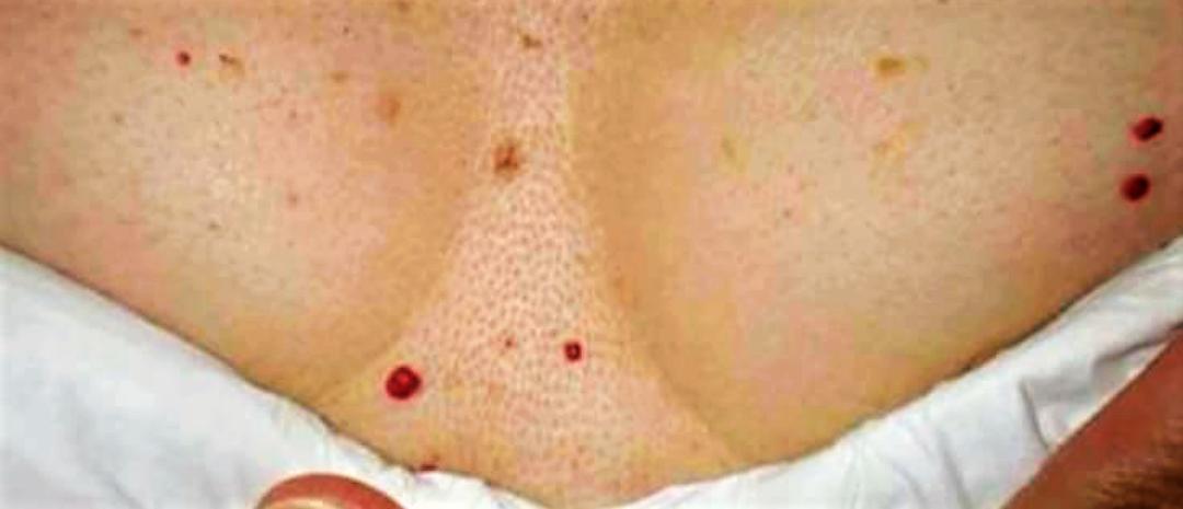 kosmetyczki olkusz depilacja laserowa olkusz laserowe zamykanie naczynek HIFU olkusz mezoterpaia igłowa olkusz ..kosmetolog olkusz makijaż permanentny olkusz gabinet kosmetyczny trwała na rzęsy.