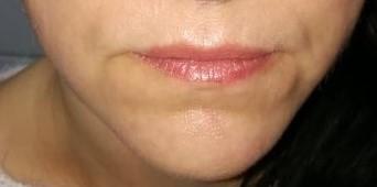 kosmetyczki olkusz depilacja laserowa olkusz laserowe zamykanie naczynek olkusz mezoterpaia igłowa olkusz hifu permanentny olkusz hifu gabinet