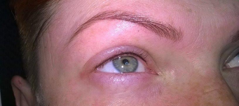 najlepsza kosmetyczka olkusz chodorowska kosmetolog fotoodmładzanie ipl zamykanie naczynek depilacja lseerowa mezoterapia igłowa